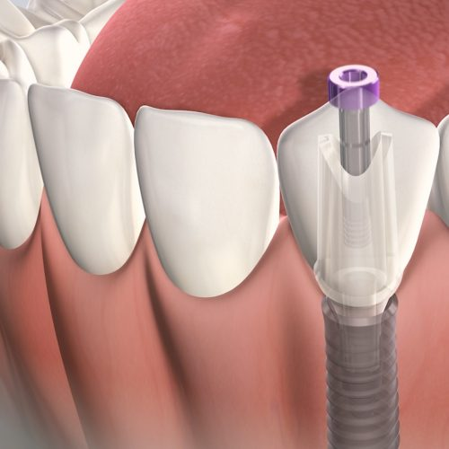 Dental_Implant_abutment_desktop