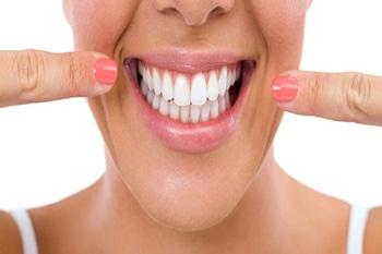 quality-dental-implants-1